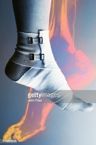 Human foot with bandage, low section