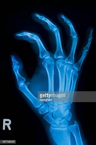 Menschliche Handbone
