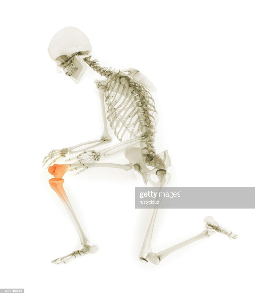 Ginocchio umano dolore : Stock Photo