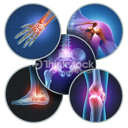 Human Painful Joints : Stock Photo
