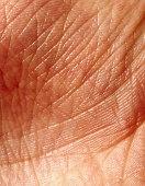 Human skin, close-up
