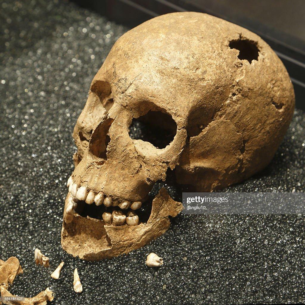 Crânio humano : Foto de stock