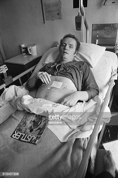 Hustler Magazine publisher Larry Flynt shows the scars remaining on his abdomen 5/9 as he continues to recover in Ohio State University Hospital from...