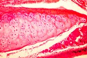 Hyaline cartilage of human trachea, light micrograph