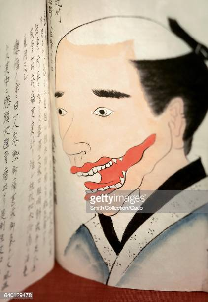 Illustrated manuscript open to a drawing of a man's face with a red tumor by his mouth to be excised with general anesthesia in 'Bunsen kiroku' by...