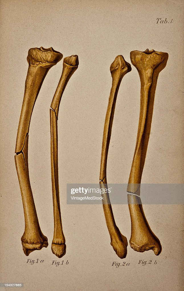 Illustration from 'Atlas and Epitome of Traumatic Fractures and Dislocations' 1902 Figure 1 a and b Tibia and Fibula of the lower extremity Fig 2 a...
