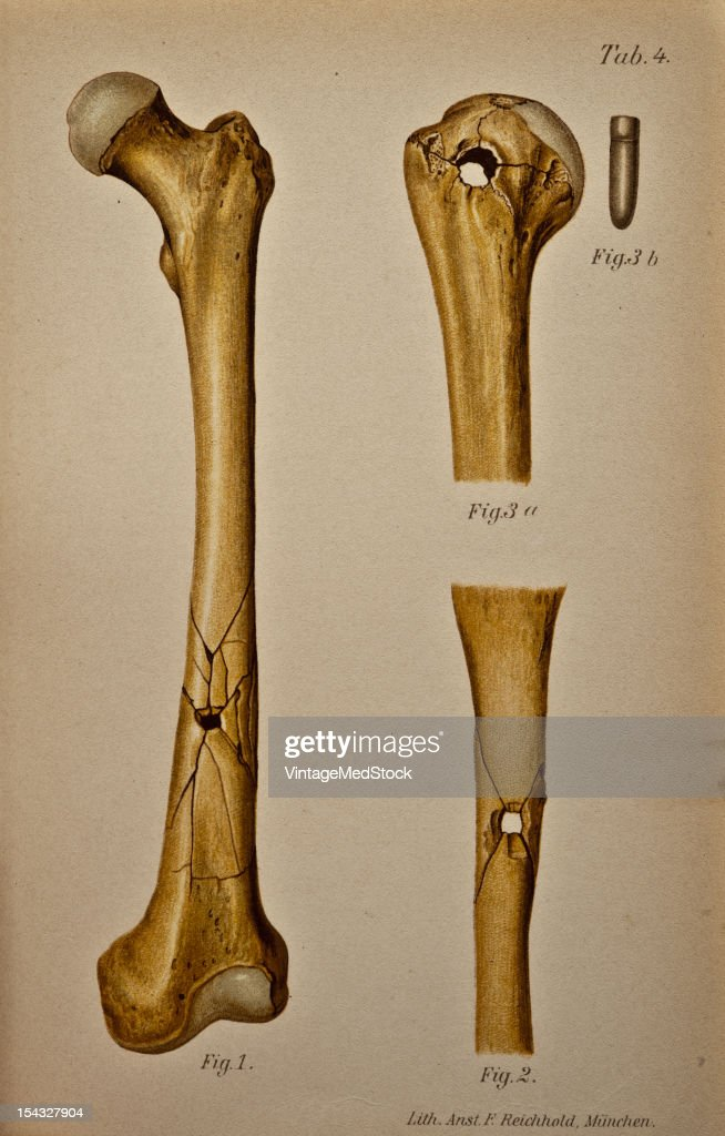 Illustration from 'Atlas and Epitome of Traumatic Fractures and Dislocations' 1902 Fig 1 Gunshot wound of the shaft of the femur Wound of entrance on...