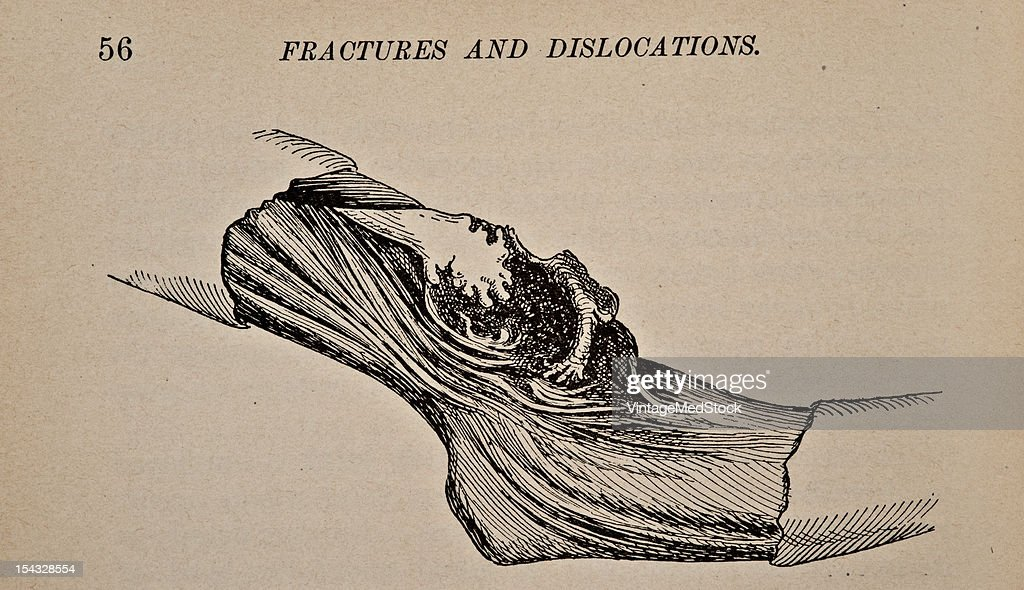 Illustration from 'Atlas and Epitome of Traumatic Fractures and Dislocations' 1902 Fig 10 False joint after fracture of the humerus The extremity of...