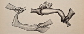 Illustration from 'Atlas and Epitome of Traumatic Fractures and Dislocations' 1902 Fig 19 Showing how the hand and foot are held in the desired...