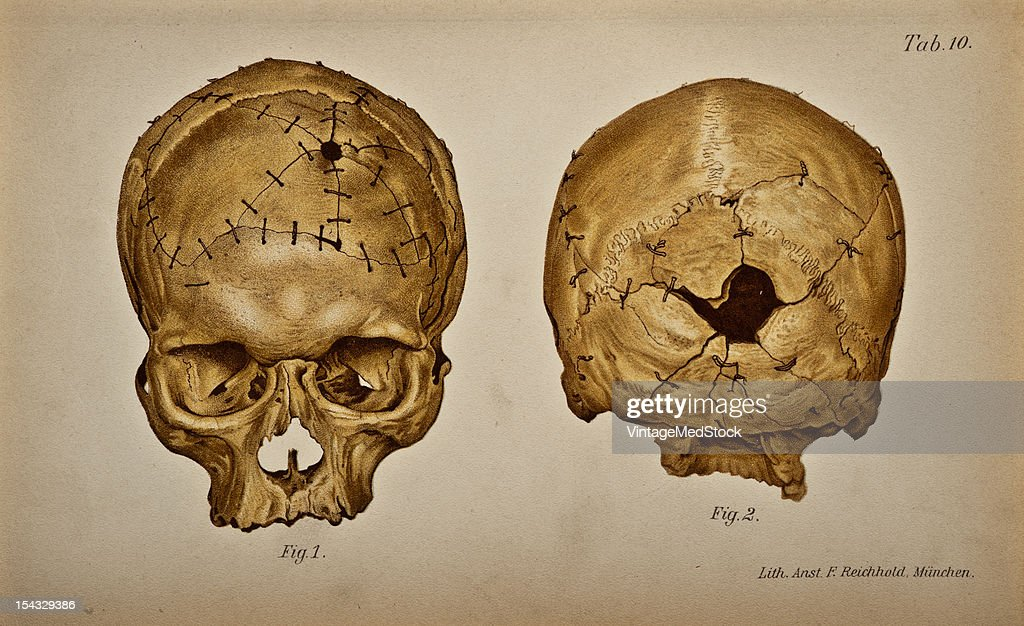 Illustration from 'Atlas and Epitome of Traumatic Fractures and Dislocations' 1902 Figs 1 and 2 show the aute rior and posterior sides of a skull...
