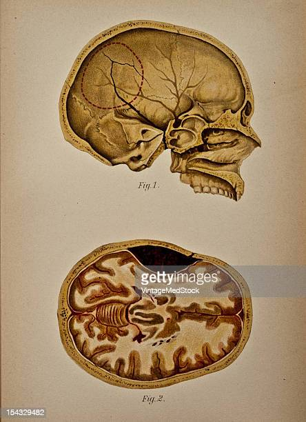 Illustration from 'Atlas and Epitome of Traumatic Fractures and Dislocations' 1902 Fig 1 Hemisection of a skull on the inner surface of which the...