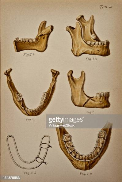 Illustration from 'Atlas and Epitome of Traumatic Fractures and Dislocations' 1902 Fig 1 Recent fracture of the body of the lower jaw The line of...