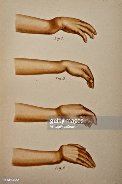 Illustration from 'Atlas and Epitome of Traumatic Fractures and Dislocations' 1902 Figs 1 and 1 a Infraction or greenstick fracture of both bones of...