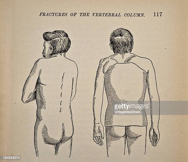 Illustration from 'Atlas and Epitome of Traumatic Fractures and Dislocations' 1902 Fig 30 Angular kyphosis in the region of the eighth and ninth...