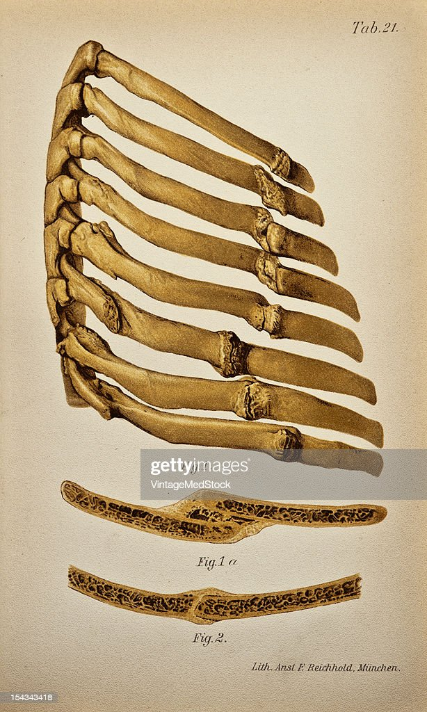 Illustration from 'Atlas and Epitome of Traumatic Fractures and Dislocations' 1902 Fig 1 Fracture involving the third to the tenth ribs on the right...
