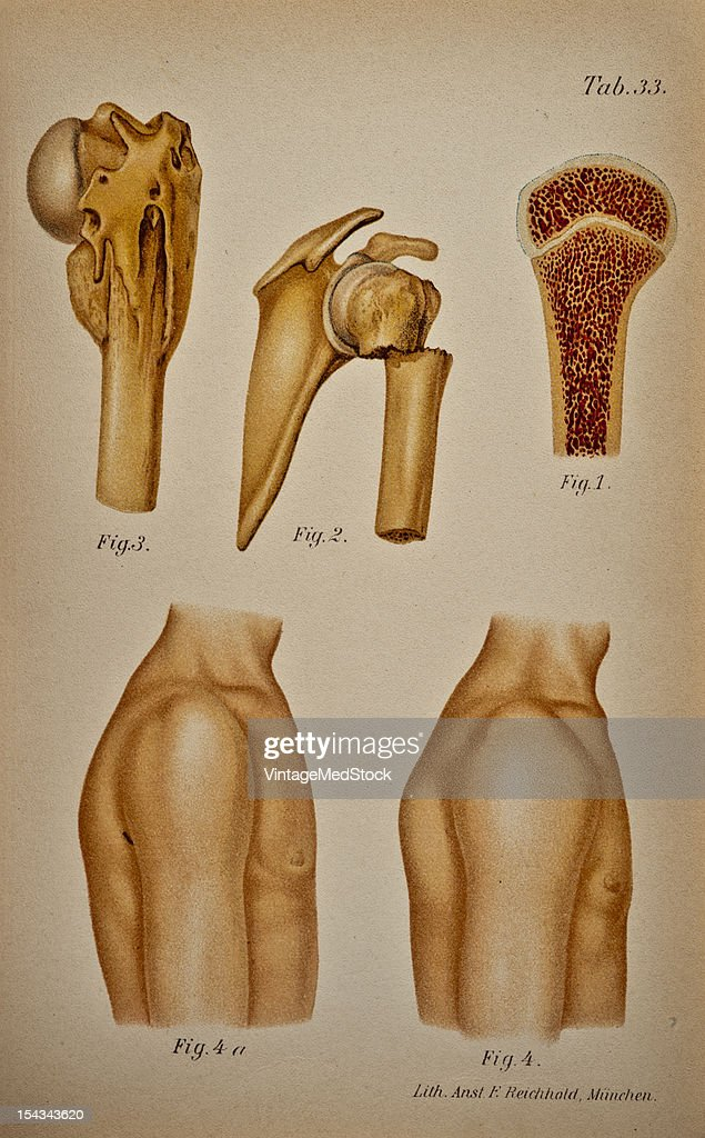 Illustration from 'Atlas and Epitome of Traumatic Fractures and Dislocations' 1902 Fig 1 Normal specimen showing the course of the epiphyseal line in...