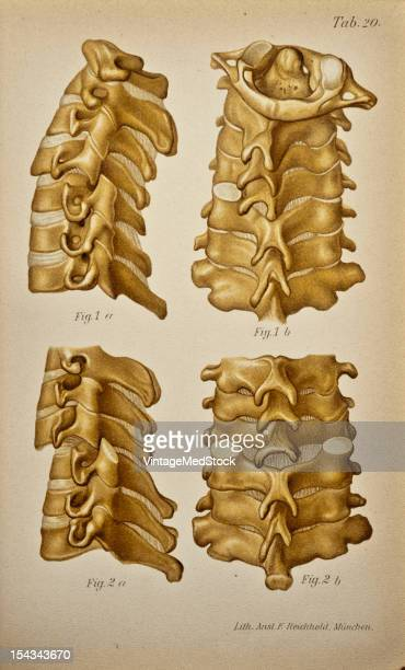 Illustration from 'Atlas and Epitome of Traumatic Fractures and Dislocations' 1902 These illustrations were made from specimens in which the...