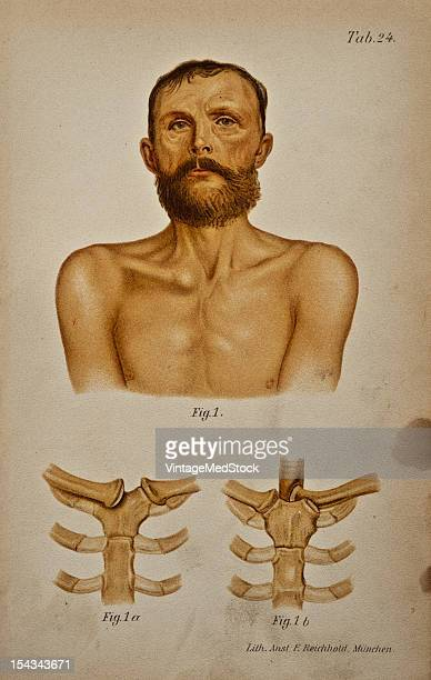 Illustration from 'Atlas and Epitome of Traumatic Fractures and Dislocations' 1902 Fig 1 Presterual luxation of the right clavicle in a man fifty...
