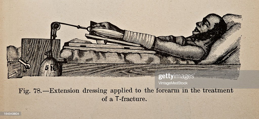 Illustration from 'Atlas and Epitome of Traumatic Fractures and Dislocations' 1902 Fig 78 Extension dressing applied to the forearm in the treatment...