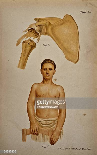 Illustration from 'Atlas and Epitome of Traumatic Fractures and Dislocations' 1902 Fig 1 Specimen of a juvenile shoulder joint The connection between...