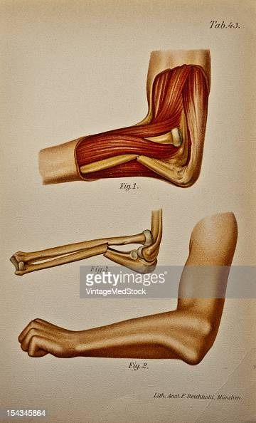 Illustration from 'Atlas and Epitome of Traumatic Fractures and Dislocations' 1902 Fig 1 Anatomic preparation of this typical injury Left arm outer...