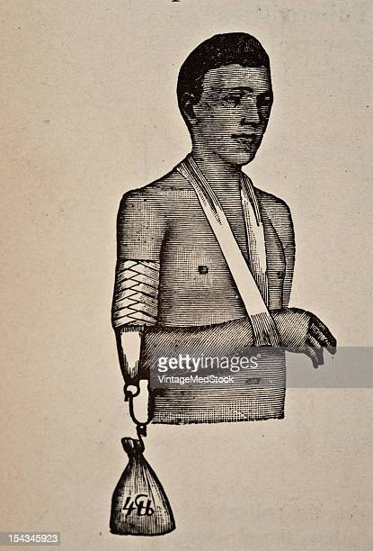 Illustration from 'Atlas and Epitome of Traumatic Fractures and Dislocations' 1902 Fig 62 Extension apparatus for fracture of the humerus to be worn...