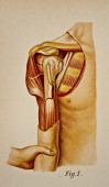 Illustration from 'Atlas and Epitome of Traumatic Fractures and Dislocations' 1902 Fig 1 Adduction of the arm until the region of the elbow comes in...
