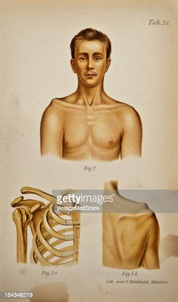 Illustration from 'Atlas and Epitome of Traumatic Fractures and Dislocations' 1902 Fig 1 The abnormal prominence of the clavicle is very conspicuous...