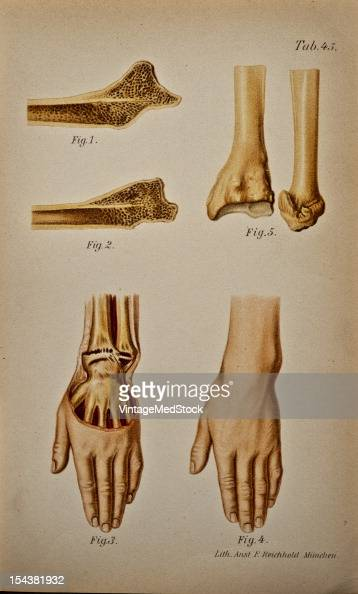 Illustration from 'Atlas Epitome of Traumatic Fractures Dislocations' 1902 Fig 1 Typical fracture of the lower end of the radius united with...