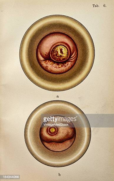 Illustration from 'Atlas of Syphilis and the Venereal Diseases' 1898 A The vaginal segment enlarged as a whole the os slightly contracted by scar...