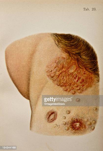 Illustration from 'Atlas of Syphilis and the Venereal Diseases' 1898 At the edge of the hair in the neck is a group of copper colored papules closely...