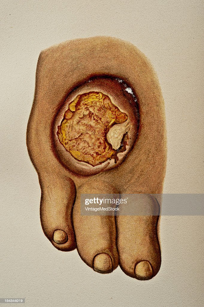 Illustration from 'Atlas of Syphilis and the Venereal Diseases' 1898 On the dorsum of the right foot corresponding in position to the fourth and...
