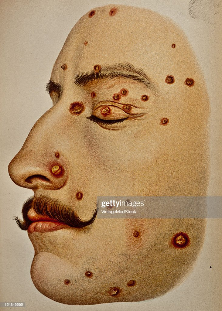Illustration from 'Atlas of Syphilis and the Venereal Diseases' 1898 On the face the eruption takes the form of hard nodules ranging in size from the...