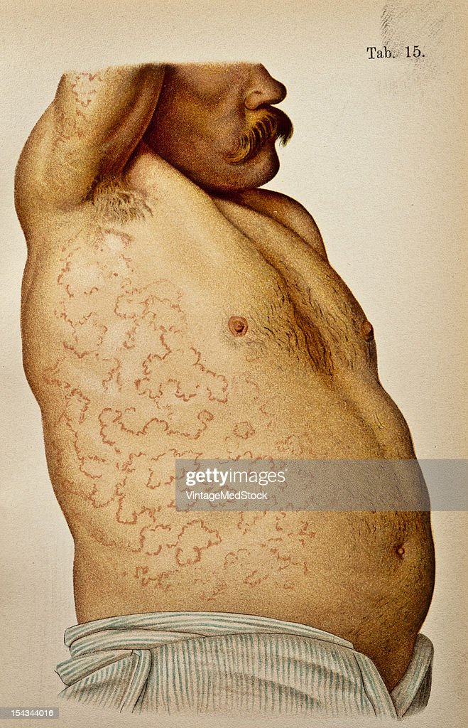 Illustration from 'Atlas of Syphilis and the Venereal Diseases' 1898 Present Condition On the dorsum of the penis is an infiltrated scar as large as...