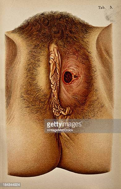 Illustration from 'Atlas of Syphilis and the Venereal Diseases' 1898 Present Condition The entire left labium majus shows a livid discoloration and...
