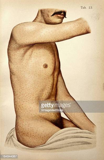 Illustration from 'Atlas of Syphilis and the Venereal Diseases' 1898 The skin of the entire body is thickly covered with red spots of a darker color...