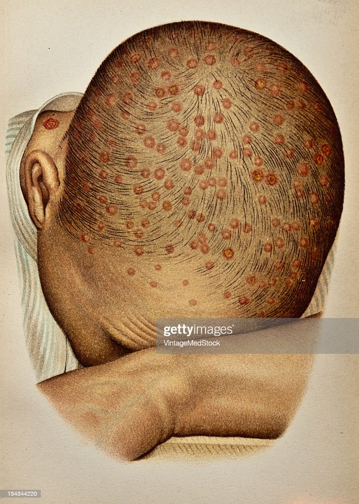 Illustration from 'Atlas of Syphilis and the Venereal Diseases' 1898 Present Condition On the forehead and on the hairy scalp are numerous pustules...