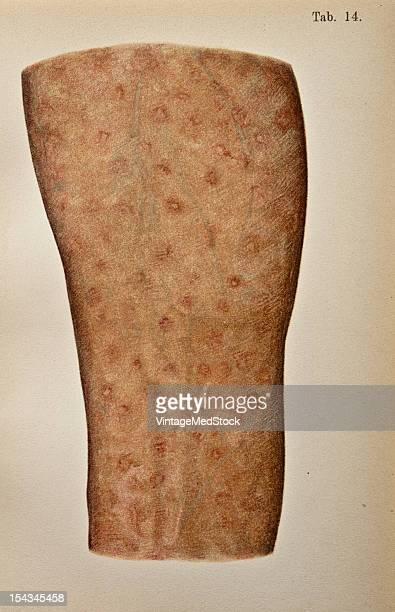 Illustration from 'Atlas of Syphilis and the Venereal Diseases' 1898 Present Condition A livid somewhat infiltrated scar the result of the primary...