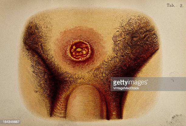 Illustration from 'Atlas of Syphilis and the Venereal Diseases' 1898 Present Condition In the pubic region there is a sclerosis about the size of a...