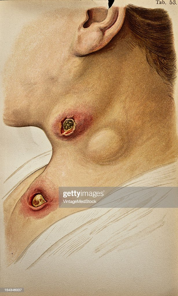 Illustration from 'Atlas of Syphilis and the Venereal Diseases' 1898 The inguinal glands are hard and present a multiple swelling the axillary glands...