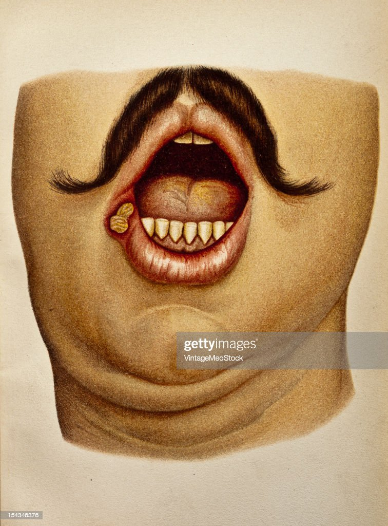 Illustration from 'Atlas of Syphilis and the Venereal Diseases' 1898 Present Condition In the mucous membrane of the right angle of the mouth an oval...