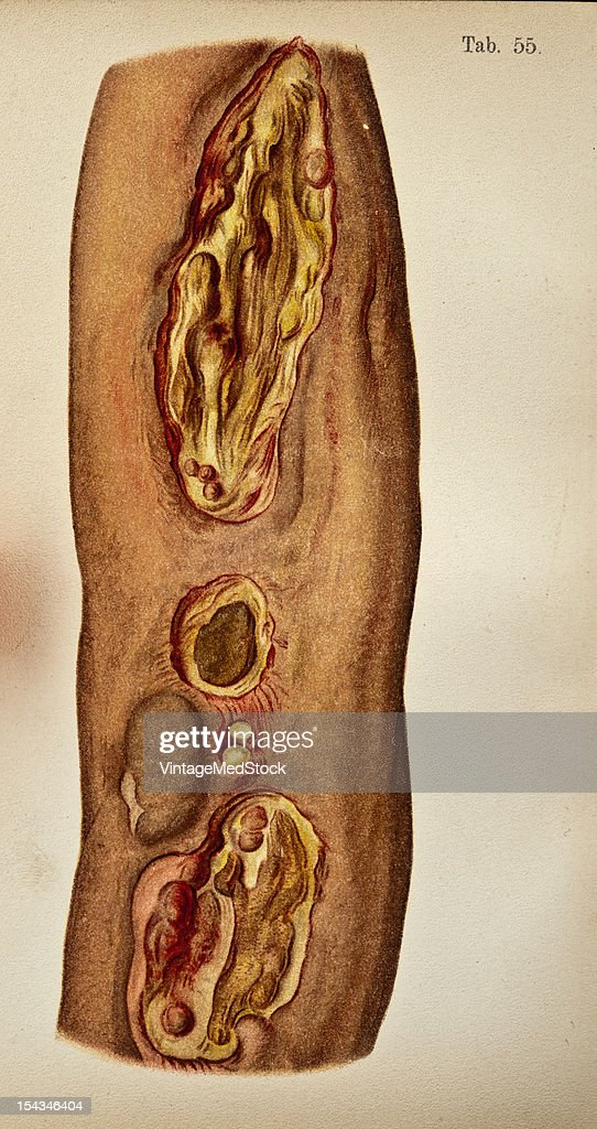 Illustration from 'Atlas of Syphilis and the Venereal Diseases' 1898