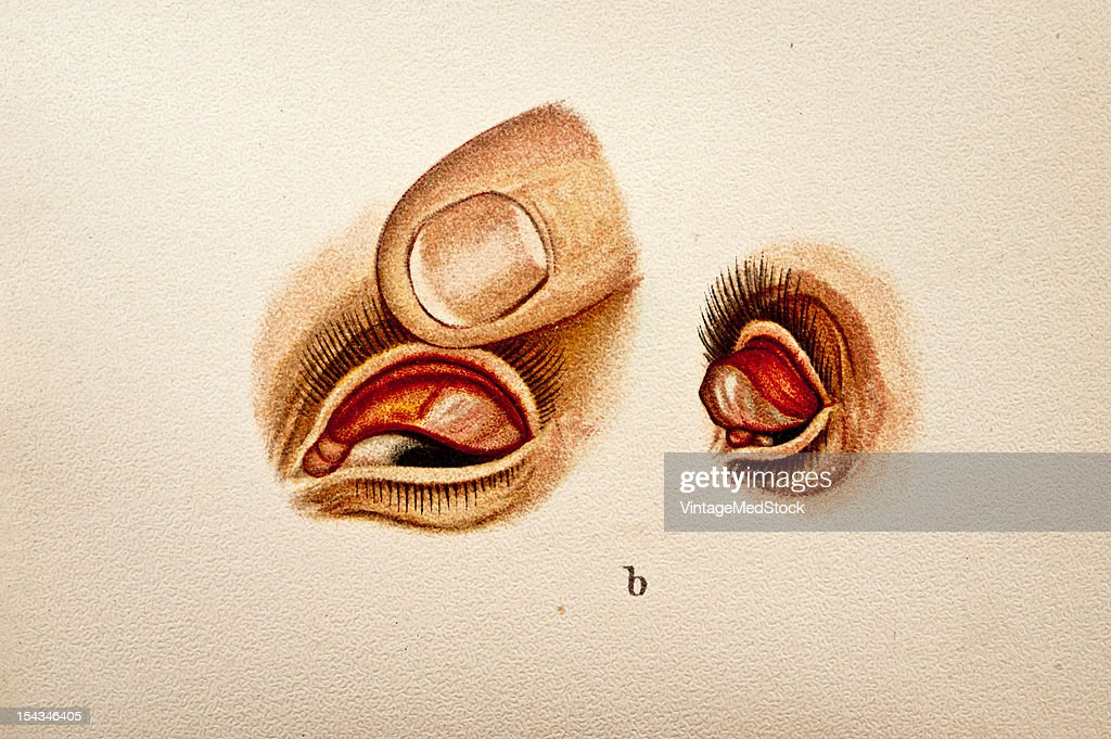 Illustration from 'Atlas of Syphilis and the Venereal Diseases' 1898 Present Condition The patient is pale and delicately built lymph glands...