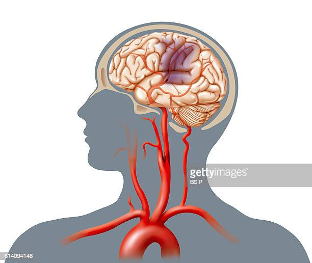 Illustration of a cerebrovascular accident caused by an occlusion in the carotid