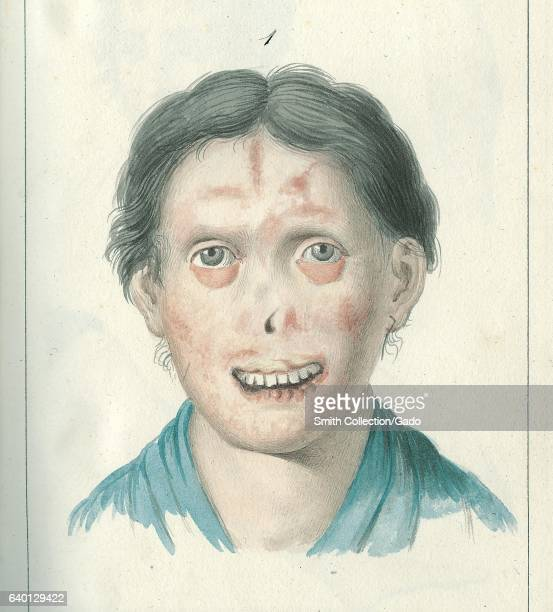 Illustration of Agata Lapieruz who had sores that eventually formed crusts and attacked the soft flesh of the face in Guiseppe Vallenzasca's 'Cenni...