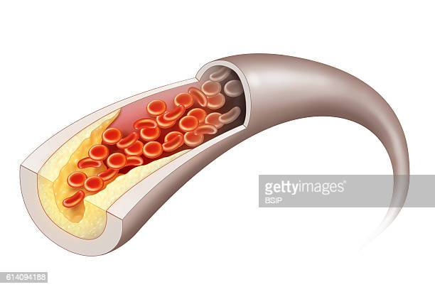 Illustration of an artheromatous plaque in a blood vessel This plaque slows blood flow which can lead to cardiovascular complications depending on...