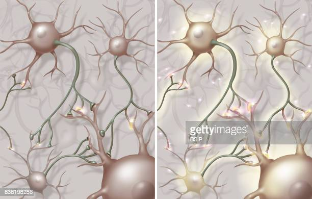 Illustration of electroshock treatment in the neural network On the left the network of a depressive patient and on the right the network after...