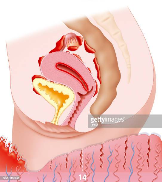 Illustration of endometriosis and the organs infected by this disease Endometriosis is the presence of the uterine lining outside the uterine cavity...