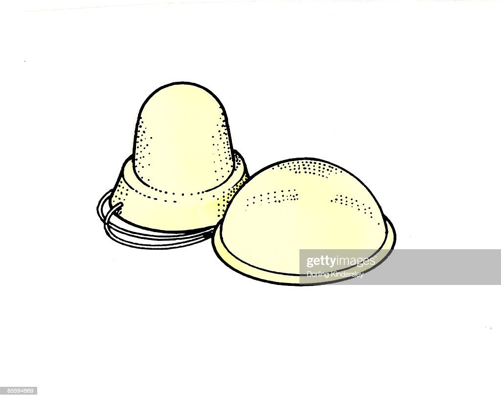 Illustration of latex diaphragm and cervical cap contraceptive barriers