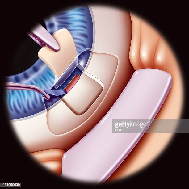 Illustration Of The Surgical Procedure For Glaucoma Sclerectomy With Ablation Of A Small Part Of The Corneoscleral Trabeculum After Having Lifted...